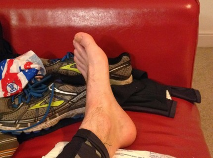 Icing is key to running on an injury.